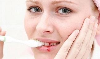 Phân tích hiện tượng chảy máu chân răng ở phụ nữ mang thai
