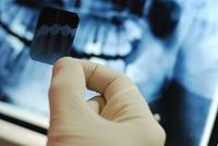 Tầm quan trọng của chụp X-Quang trong nha khoa