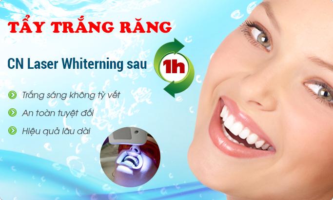 Tẩy trắng răng bằng công nghệ Laser Whitening tiên tiến nhất