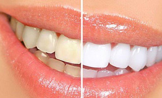 Tẩy trắng răng có khiến mòn men răng?
