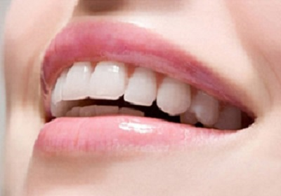 Tẩy trắng răng nhiễm màu do kháng sinh, nhiễm Flour
