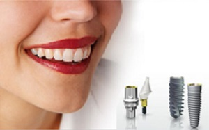 Tiêu xương ảnh hưởng gì trong cấy ghép răng implant