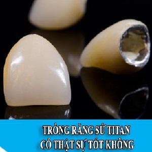 Tìm hiểu về răng sứ Titan