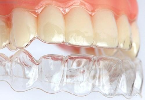 Ưu điểm khiến bạn không nên bỏ qua phương pháp niềng răng không mắc cài